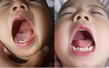 什么是小儿疱疹性咽峡炎?是不是手口足病,该如何治疗和注意事项
