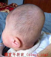 宝宝3个月,小脑袋越睡越歪,老中医教你一招让宝宝睡出漂亮头型